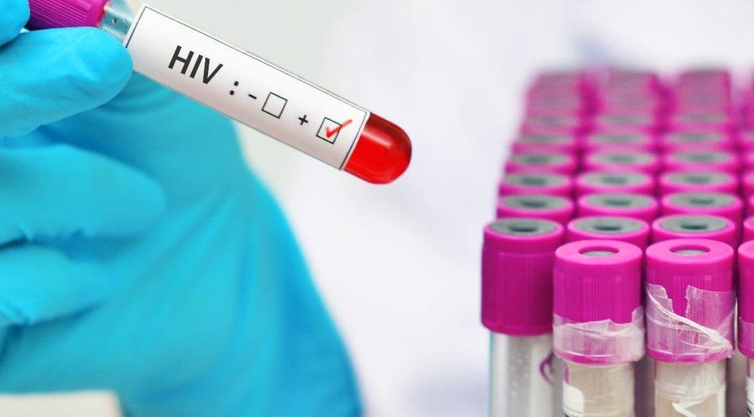 Advisory On HIV Rapid Testing
