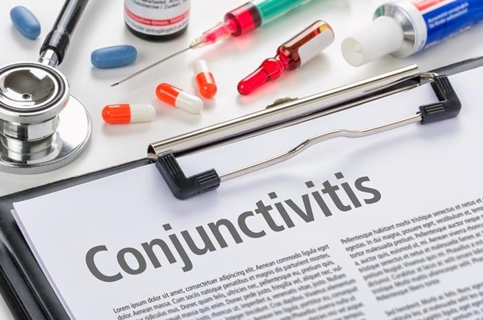 Health Ministry's Conjunctivitis Advisory