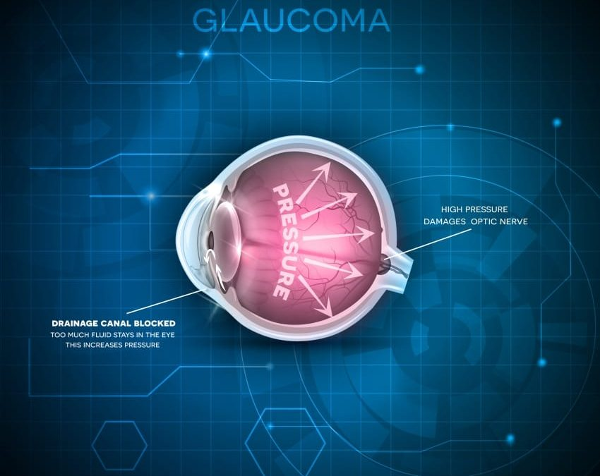 Public Lecture On Glaucoma On March 14